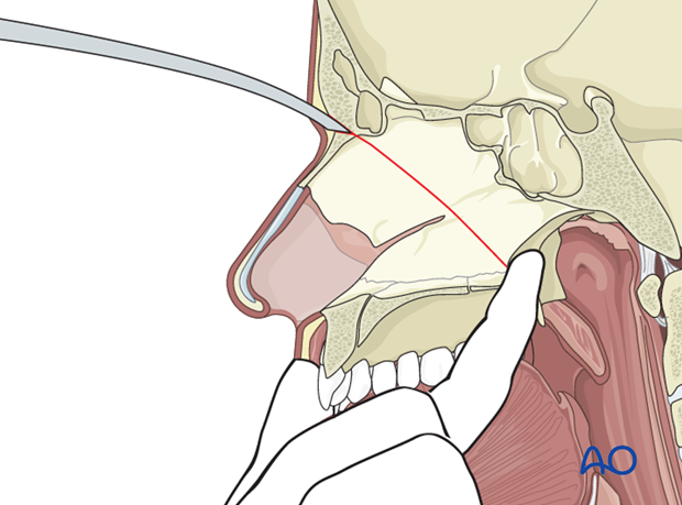 Le Fort II osteotomy in cleft lip and palate patients