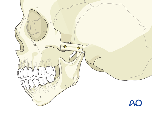 Hemifacial microsomia (HFM) - Construction of zygomatic arch