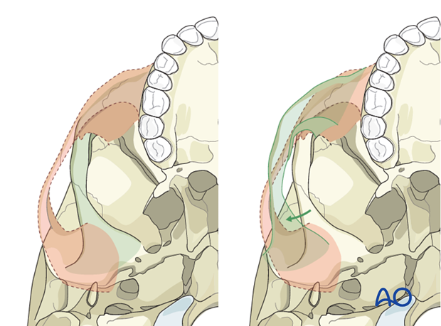 Hemifacial microsomia (HFM) - Movement of the zygomatic arch and glenoid fossa by osteotomy