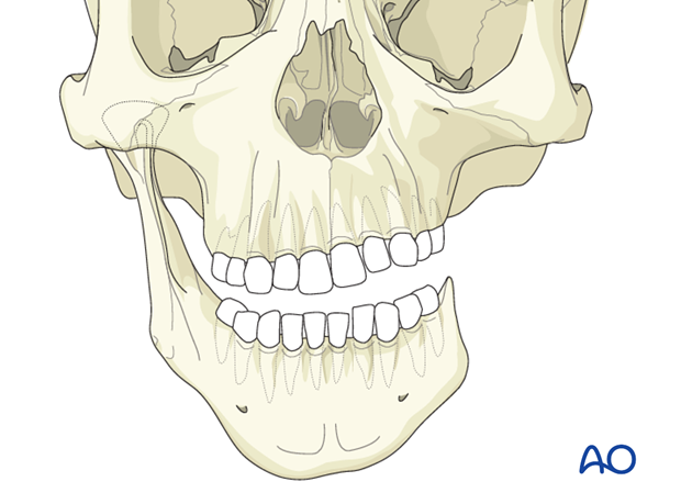 Hemifacial microsomia (HFM) - Construction of mandibular ramus and condyle