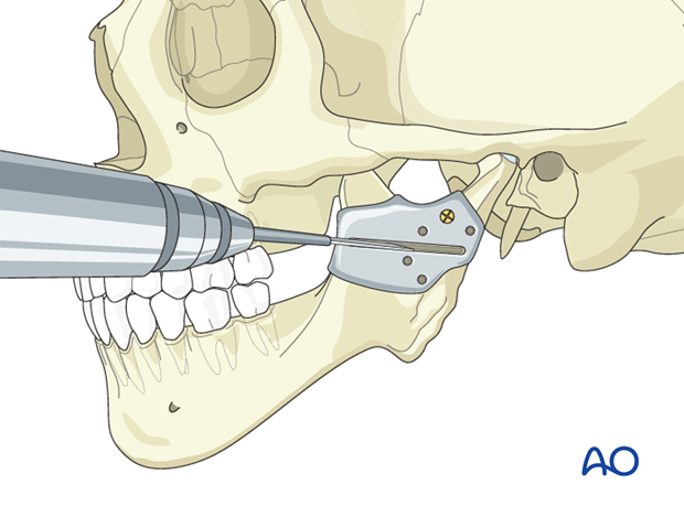 Hemifacial microsomia (HFM) - Lengthening of the mandibular ramus by distraction osteogenesis