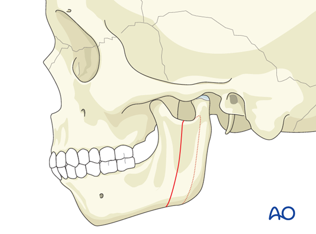 Hemifacial microsomia (HFM) - Lateral movment of mandibular ramus and condyle by osteotomy