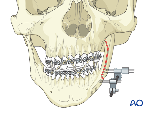 Hemifacial microsomia (HFM) - Lateral augmentation by distraction osteogenesis