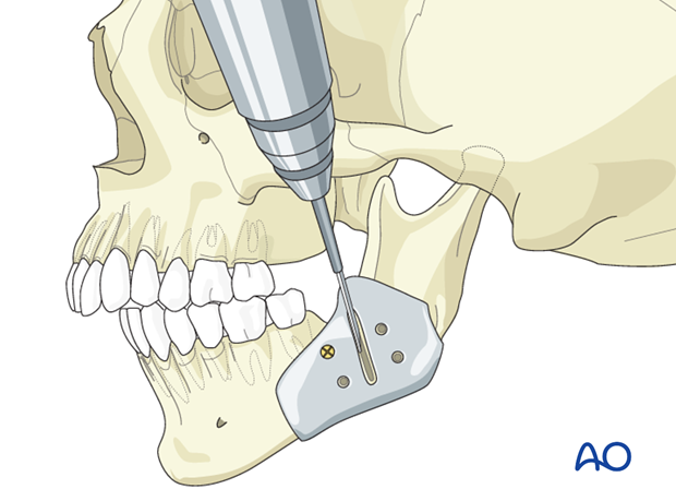 Hemifacial microsomia (HFM) - Mandibular advancement by distraction osteogenesis