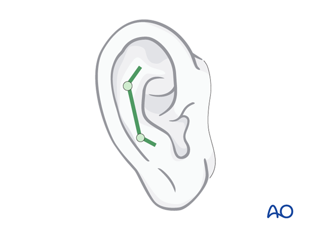 Hemifacial microsomia (HFM) - Bone anchored ear prosthesis