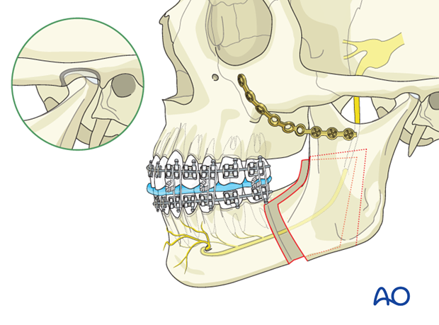 Orthognathic Surgery: BSSO - Bilateral sagittal split osteotomy (Hunsuck)