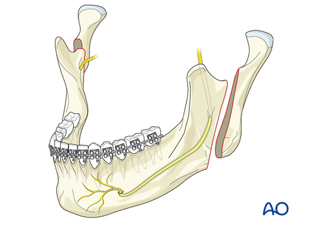 Orthognathic Surgery: Vertical ramus osteotomy