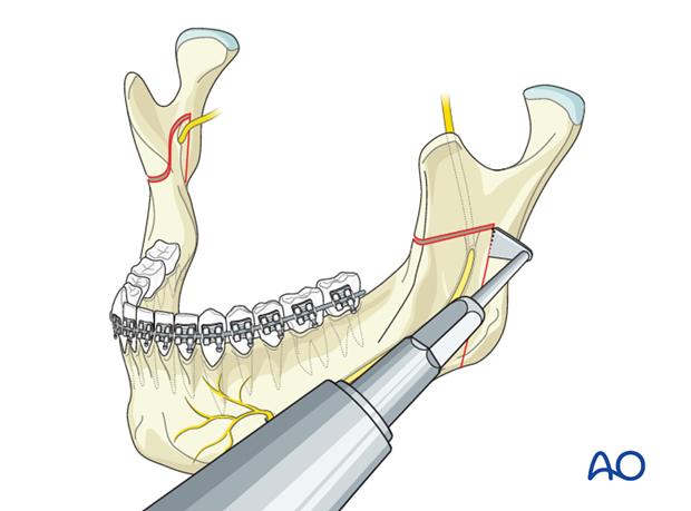 Orthognathic Surgery: Inverted L-osteotomy