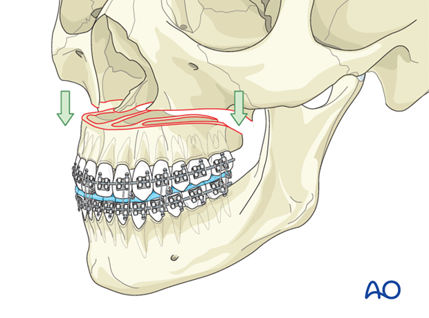 Orthognathic Surgery: Le Fort I osteotomy