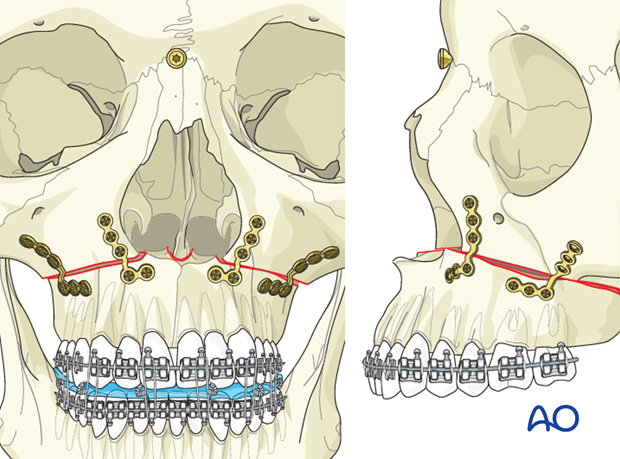Le Fort I osteotomy for Maxillary prognathism