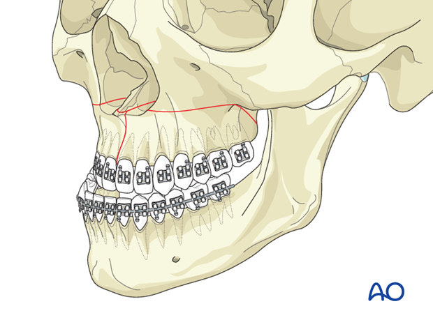Orthognathic Surgery: Surgically assisted rapid palatal expansion (SARPE)