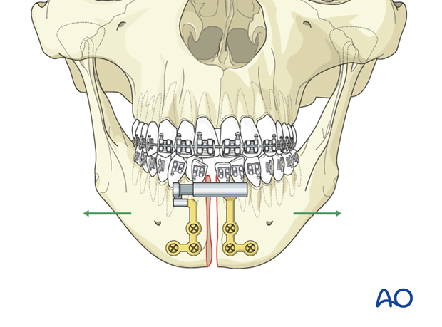 Orthognathic Surgery: Surgically assisted rapid mandibular expansion