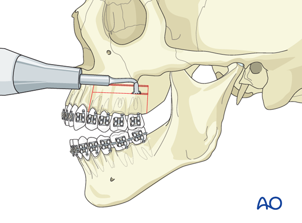 Orthognathic Surgery: Subapical osteotomies
