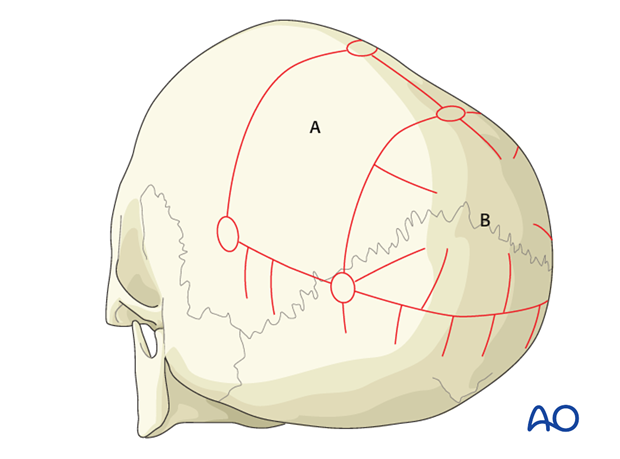 posterior reshaping