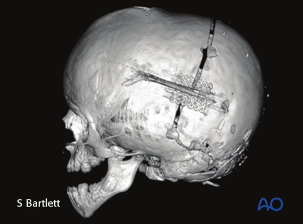 posterior vault expansion by distraction osteogenesis