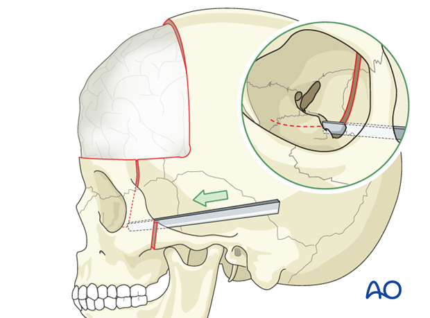 four wall box osteotomy of the orbits