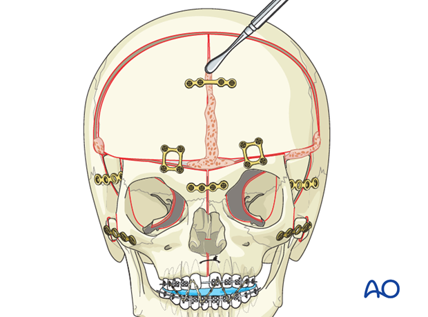 orbital hypertelorism intraorbital hypertelorism with midface defect