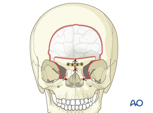 medial orbital composite unit translocation