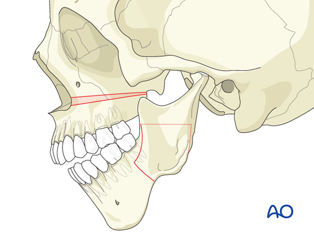 conventional orthognathic surgery