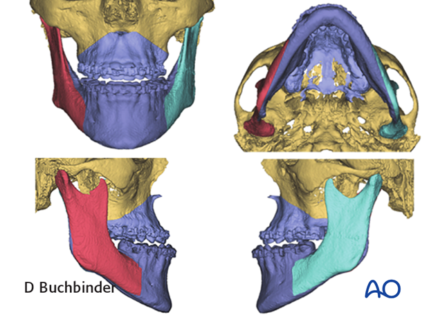 Planning of orthognathic surgery