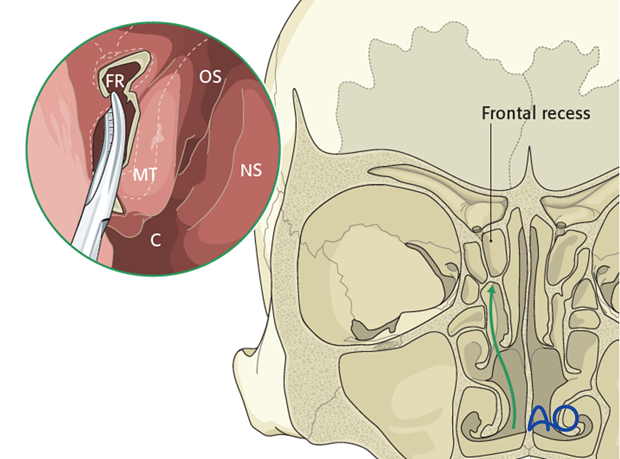endoscopically assisted transnasal drainage