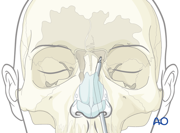 frontobasal sinus outflow disease