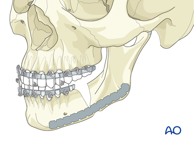 Nonunion of the mandible - Revision surgery - Debridment and internal fixation