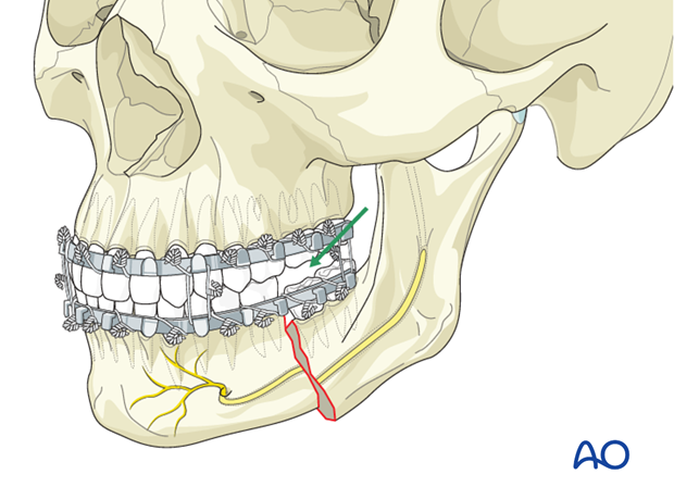 Malreduction of the mandible