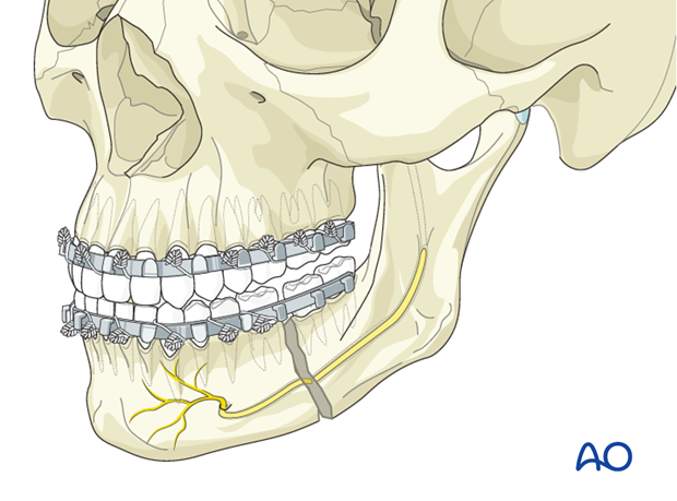 Malreduction of the mandible - Revision surgery - Closed reduction and MMF