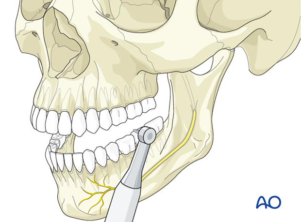 Secondary corrections of the mandible - Nonoperative treatment - Correction of minor malocclusions