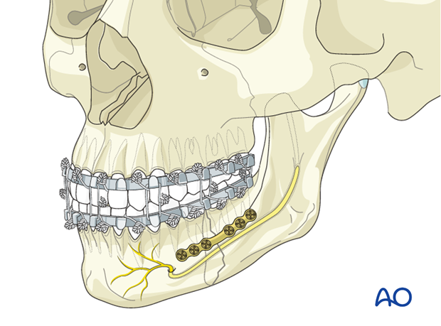 Malreduction of the mandible - Revision surgery - Open reduction and internal fixation