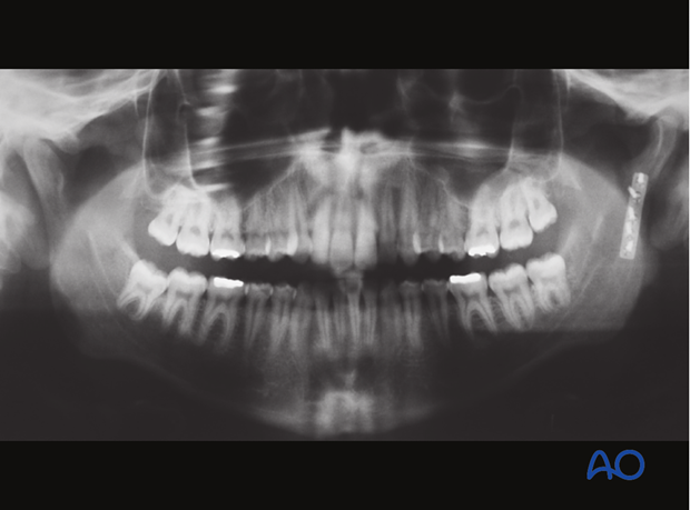 Malreduction of the condyle - Revision surgery - Open reduction and internal fixation