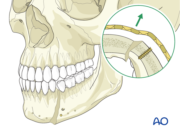 Malunion of the mandible - Revision surgery - Osteotomy and internal fixation