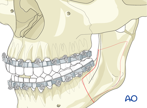 Malunion of the mandible - Revision surgery - Orthognathic surgery
