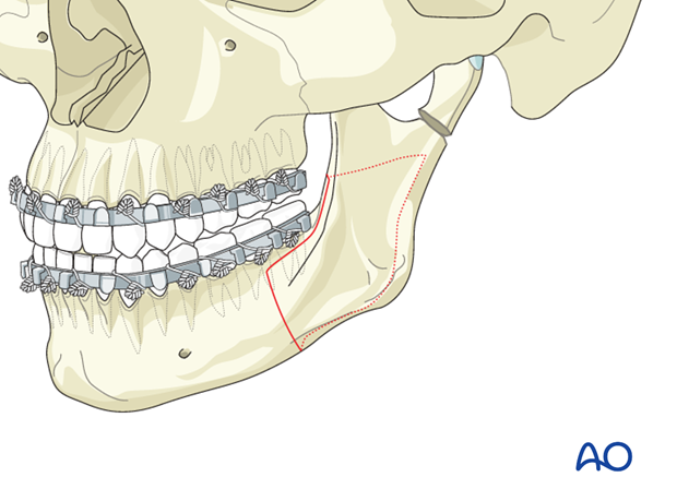 Nonunion of the mandible - Revision surgery - Orthognathic surgery