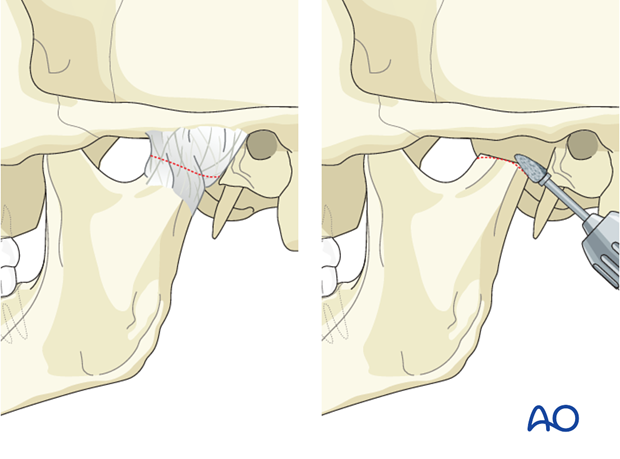 Condylar sequelae - Revision surgery - Gap arthroplasty