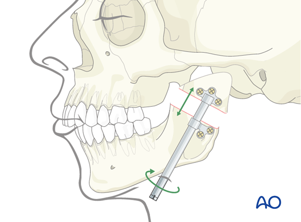 Condylar sequelae - Revision surgery - Distraction osteogenesis of mandibular ramus