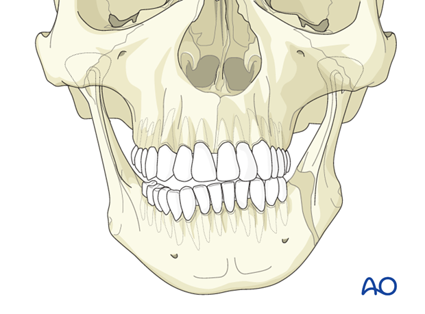 Facial assymetry - Revision surgery - Orthognathic surgery