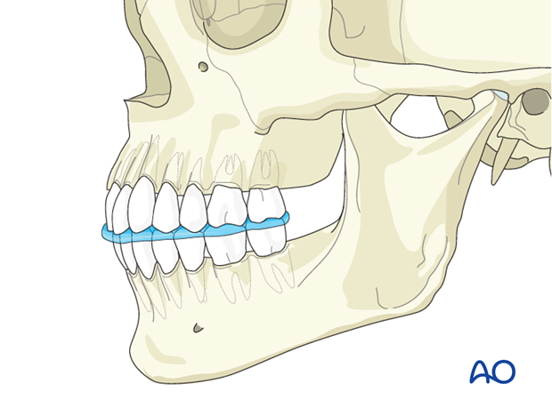 mandible tmj dysfunction