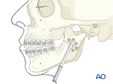 mandibular facial asymmetry