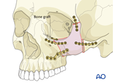 orbitozygomatic osteotomy