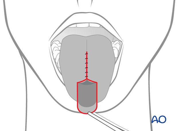 tongue flap