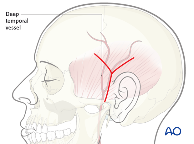 temporalis muscle flap
