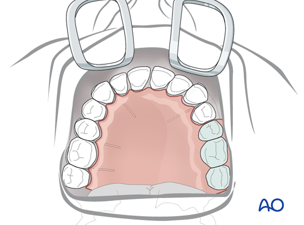 maxilla alveolar defects