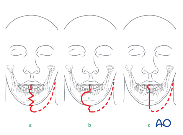 Reconstruction of midface Brown II defect
