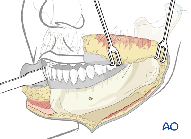 lip split approach to the mandible