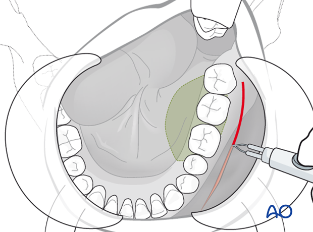 visor approach approach to the mandible