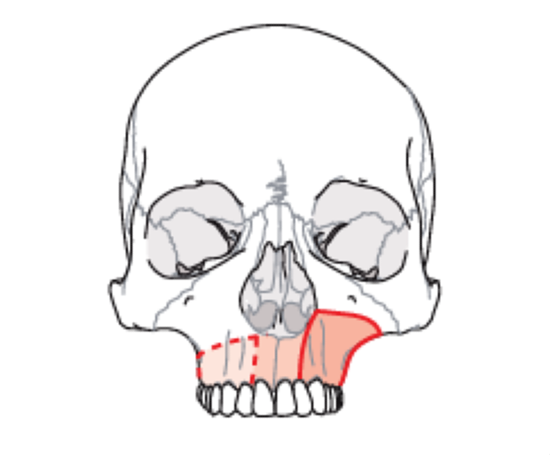 Diagnosis of midface defects - Brown II Defects
