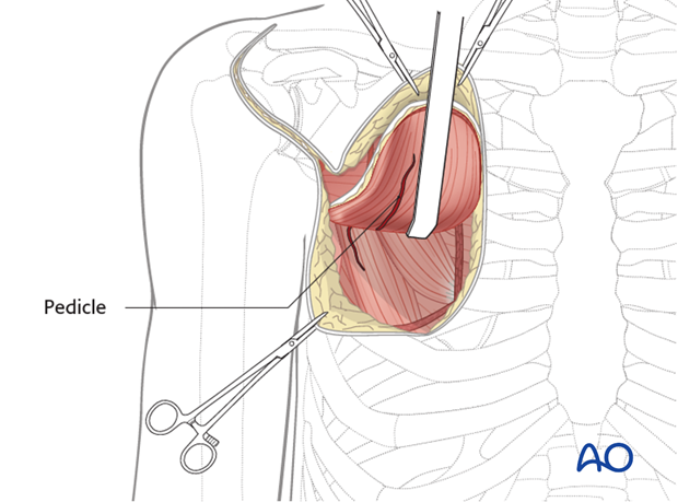 pectoralis myocutaneous pedicle flap