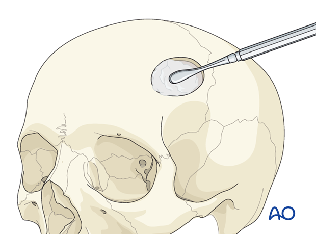 Postablative reconstruction of cranial defect: Scalp flap